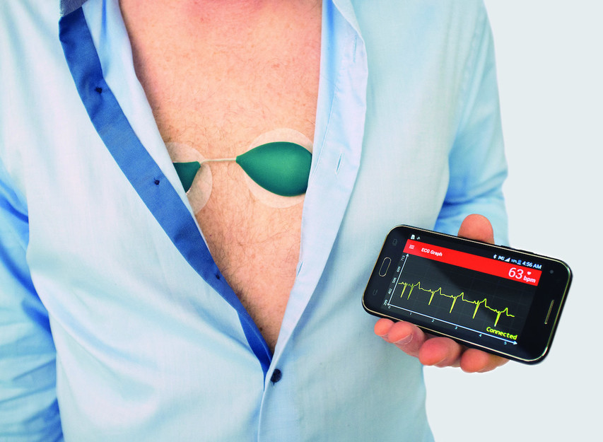 SAVVY ECG is ALL-IN-ONE MEDICAL DEVICE